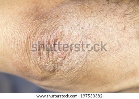 human elbow macro - stock photo