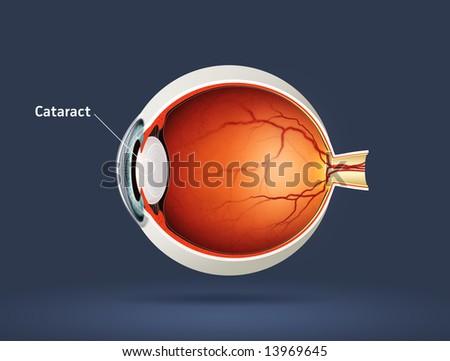 Human eye - cataract (eye disease) - stock photo