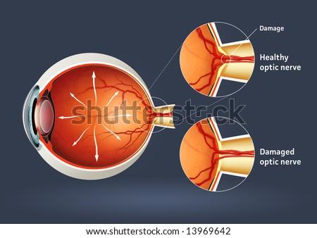 Human eye - glaucoma (eye disease) - stock photo
