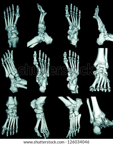 skeleton foot stock images, royalty-free images & vectors, Skeleton