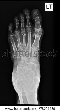 Human foots ankel and leg x-ray picture.