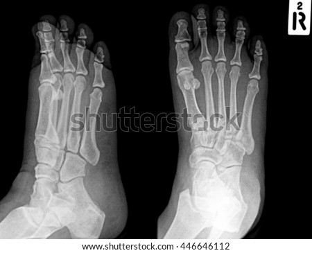 Human foots ankel and leg x-ray picture