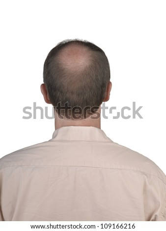 Human hair loss - stock photo
