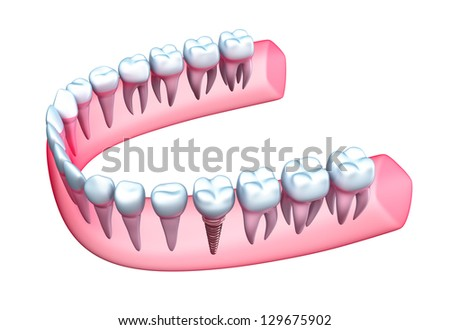 Human jaw model with teeth and implant. - stock photo