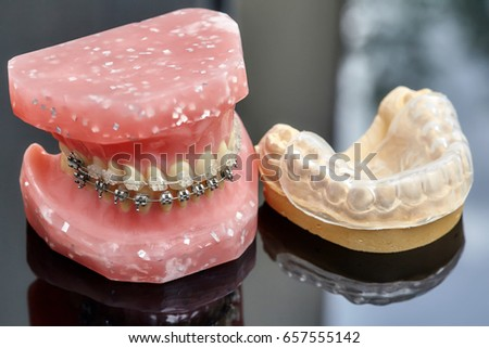 Human Jaw Teeth Model Metal Wired Stock Photo 657555115 - Shutterstock