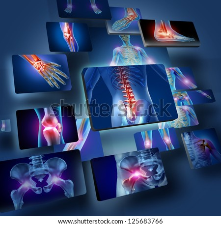 Human joints concept with the skeleton anatomy of the body with a group of panels of sore joints glowing as a pain and injury or arthritis illness symbol for health care and medical symptoms. - stock photo