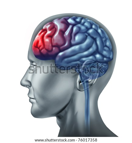 Human migrain head ache symbol represented by a brain that is enflamed by pain. - stock photo