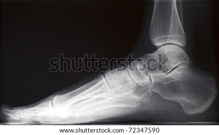 human right foot ankel xray picture (internal side) - stock photo