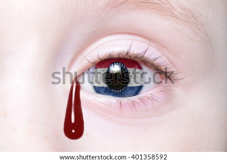 human's eye with Missouri state flag with bloody tears. concept - stock photo