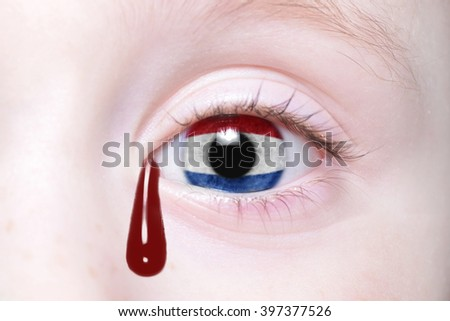 human's eye with national flag of netherlands with bloody tears. concept - stock photo