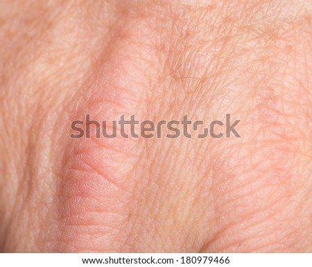 human skin as background - stock photo