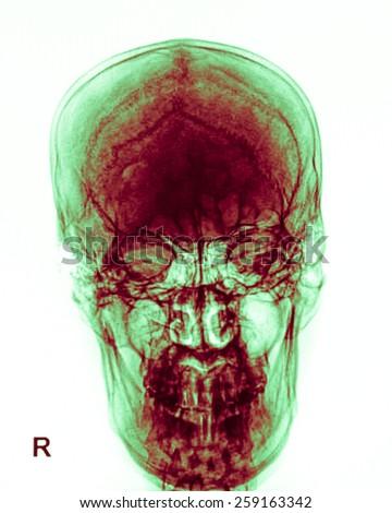 Human skull X-ray image isolated on white - stock photo