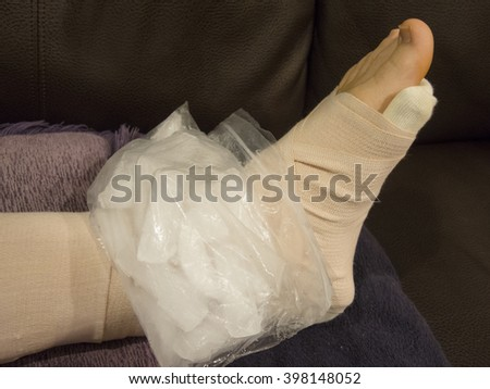 Ice Pack on Sprained, Broken, Fractured Ankle - stock photo