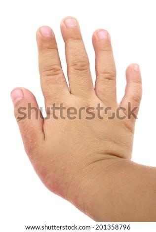 Ill allergic rash dermatitis eczema skin texture at boy's hand. - stock photo