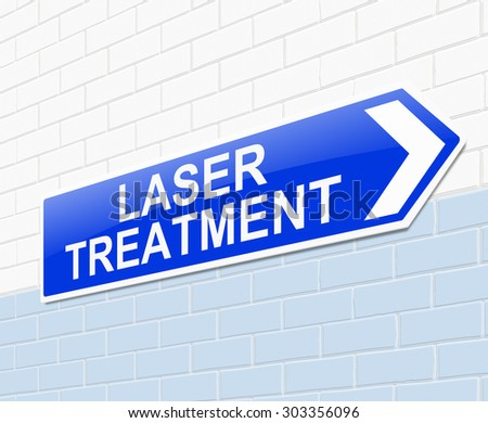 Illustration depicting a sign with a laser treatment concept.