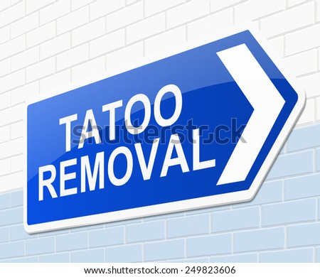 Illustration depicting a sign with a tatoo removal concept. - stock photo