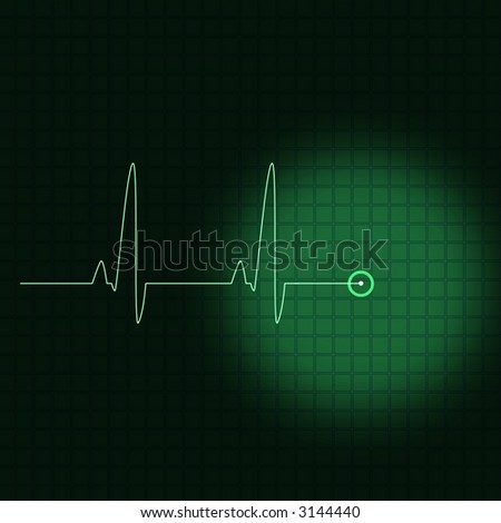 Illustration of an electrocardiogram or a ECG - stock photo