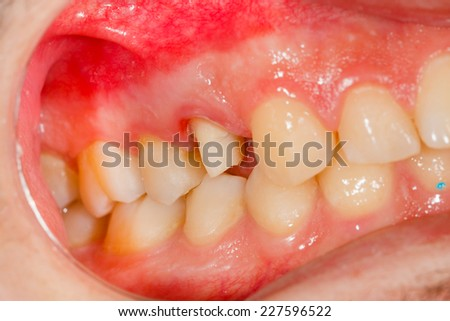 Image of a tooth before getting a dental crown. - stock photo