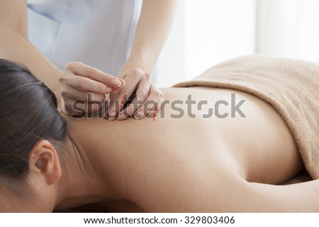 Image of woman receiving acupuncture treatment in beauty spa. - stock photo