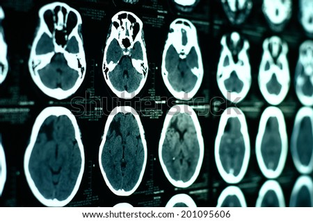 images from a computerized tomography of the brain - stock photo