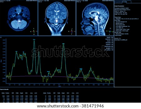 Imaging of the brain on mri scan - stock photo