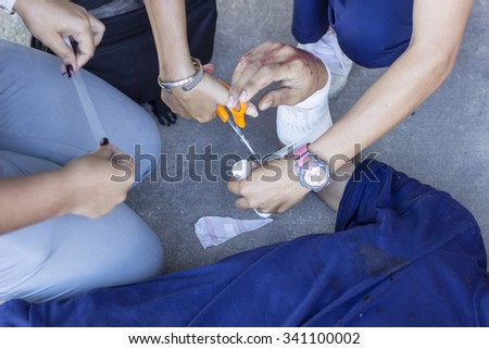 Immediate first aid is injured due to an accident. - stock photo