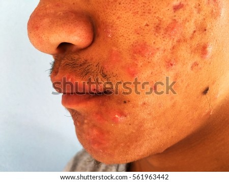 Inflammatory swell acne on the face.