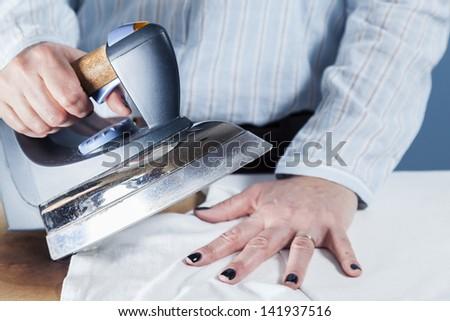 Iron burn on hand, a common domestic accident / Domestic burn - stock photo