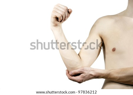 isolated disease of the hands on the background - stock photo