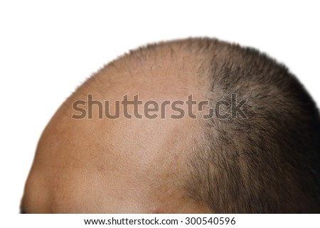 isolated male with hair loss symptoms on white background - stock photo