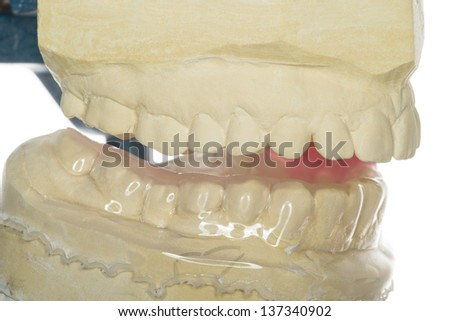isolated splint against gnashing of teeth