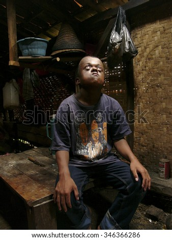 JAVA, INDONESIA - February 25: Severely mentally- and physically-handicapped Wawan, 17, poses at home for his portrait on February 25, 2007 in West Java, Indonesia. - stock photo