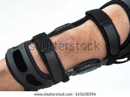 Knee brace for ACL football knee injury. - stock photo
