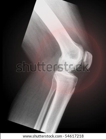 knee from the side, black background - stock photo