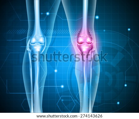 Knee pain abstract background. Healthy joint and unhealthy painful joint with osteoarthritis.  - stock photo
