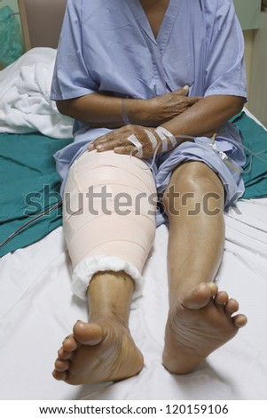 Knee replacement surgery after operation patient senior woman (60s) on the bed in hospital - stock photo