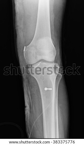 knee with total replacement x-ray image on black background