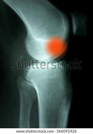 Knee Xray (X-ray) photo - stock photo