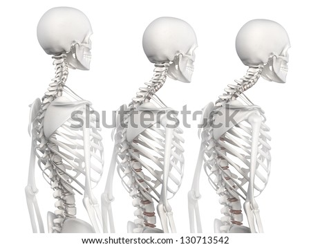 Kyphotic spine in 3 phases - stock photo