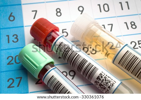 Laboratory work tools of health analysis and in the background a request calendar of citations / tubes of blood and urine samples for analysis with report and calendar citations - stock photo