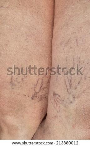lady's problem, Broken Capillaries detail - stock photo