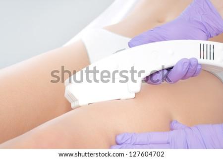Laser epilation treatment close up - stock photo