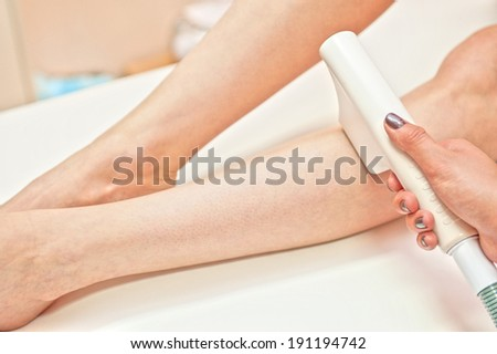 Laser hair removal on ladies legs - stock photo