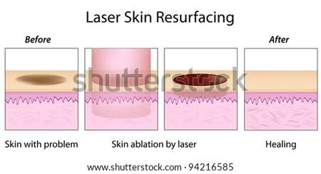 Laser Skin Resurfacing - stock photo