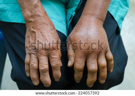 left hand inflammation from the green pit viperb snake bite