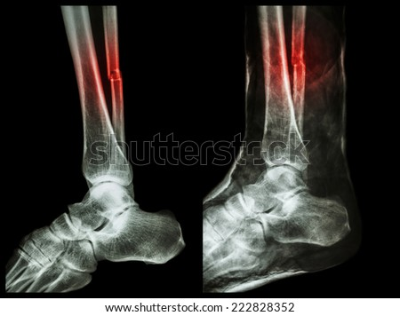 Left image : Fracture shaft of fibula (calf bone)  ,  Right image : It was splinted with plaster cast - stock photo