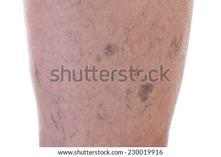 Leg full of varicose veins - stock photo