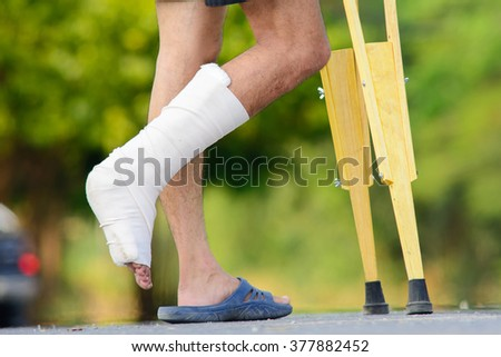 leg splint - stock photo