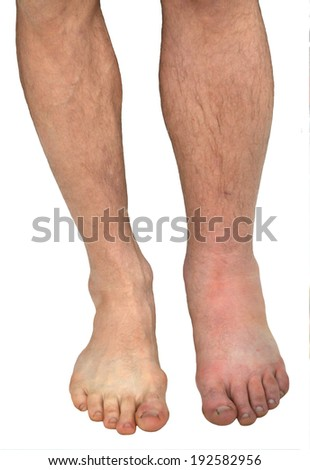 Legs men in 20 hours after a sting of the poisonous snake. Vipera berus bite the middle finger of the left foot. - stock photo