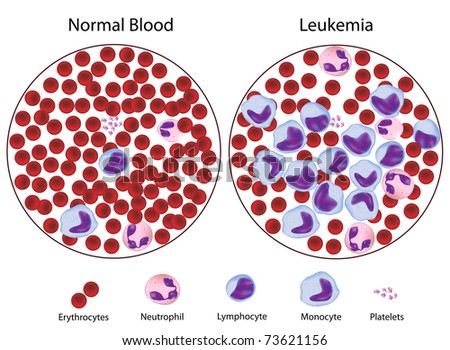 Leukemic versus normal blood
